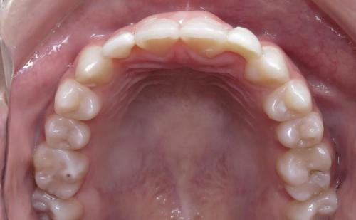 Occlusal res